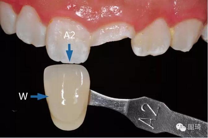 """""""掌中魔法""""前牙冠折美塑树脂修复病例"""